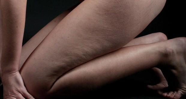 От чего появляется целлюлит на ногах