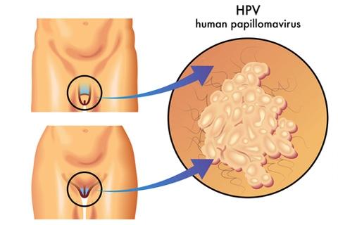 Вирус папилломы человека у мужчин. Симптомы и лечение папиллом