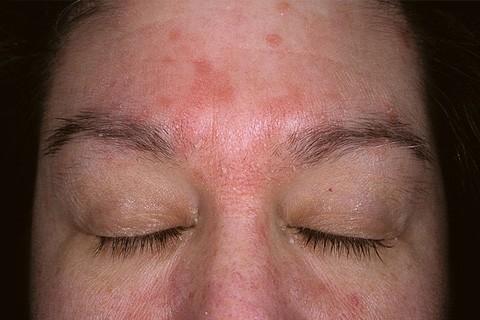 Себорейный дерматит: причины, симптомы и лечение. Как лечить ...