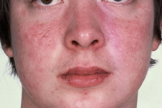 Сыпь на лице у взрослого причины