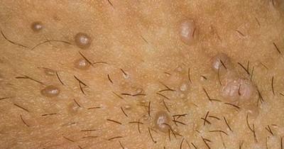 Вирус папилломы человека у мужчин фото