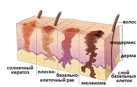 Последствия рака кожи