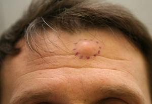 Фурункул на лбу: причины, симптомы и методы лечения