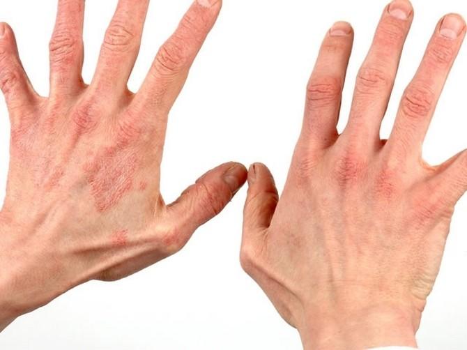 Чем лечить дерматит на руках - список препаратов