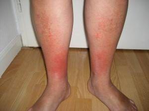 Рожа на ноге. Фото, лечение и симптомы начальной стадии | Женский ...