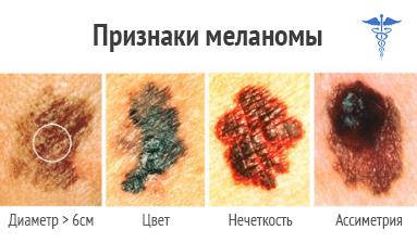 Меланома диагностика в клинике, меланома лечение, меланома ...