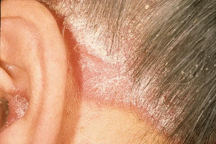 Как начинается псориаз Симптомы   Лечение псориаза
