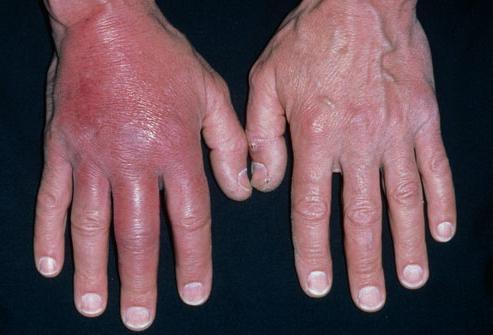 Рожистое воспаление руки. Причины, симптомы и лечение рожистого ...