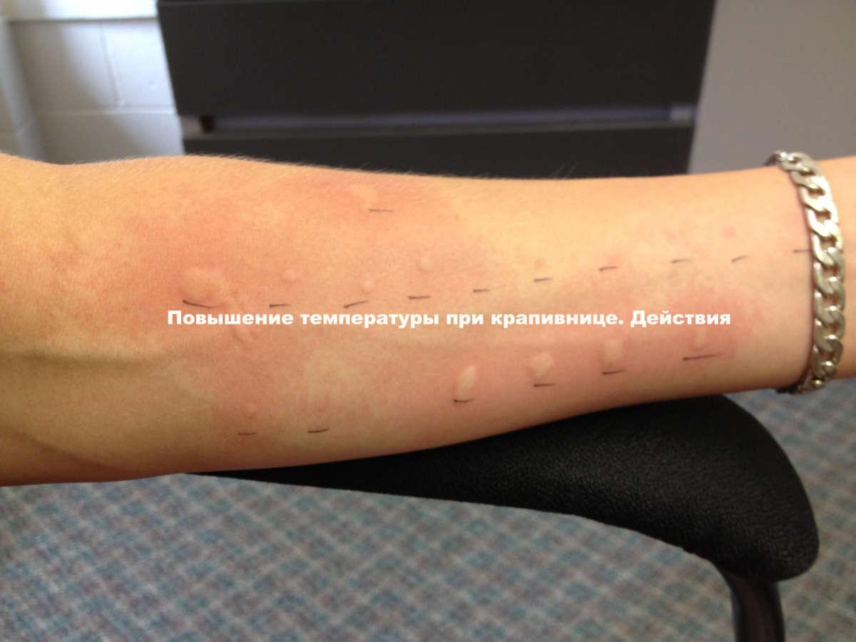 Бывает ли при крапивнице температура у детей и взрослых
