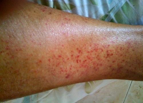 Прыщи на ногах: причины и самостоятельное лечение
