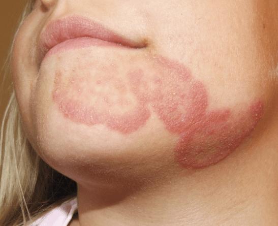 Дерматофития туловища лечение, фото, проявления
