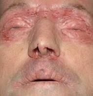 Крем от псориаза на лице | Кремы от псориаза
