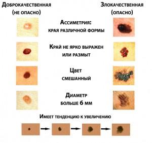 Меланома лечение причины симптомы диагностика
