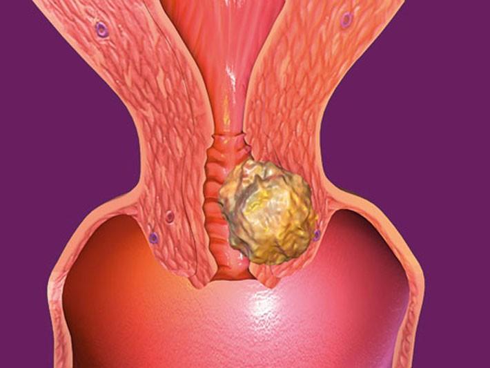 Папилломавирус шейки матки: папилломатоз, фото
