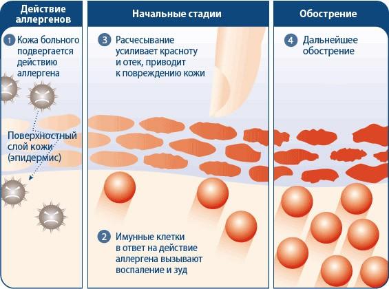 Аллергический дерматит: симптомы и лечение аллергического ...