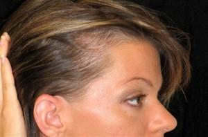 Андрогенетическая алопеция у женщин: лечение