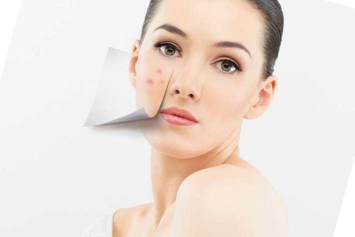 Псориаз на лице: лечение, фото, чем лечить в домашних условиях ...