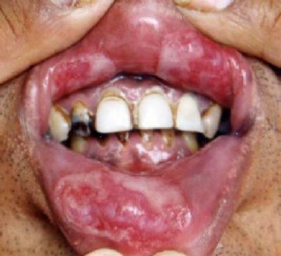 Сифилис во рту: лечение, признаки, симптомы, вторичный сифилис