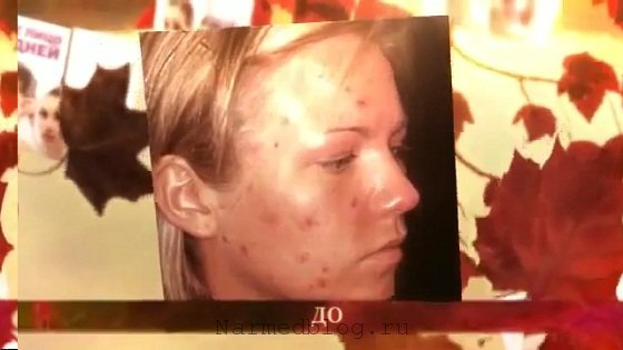 Как бороться с угрями на лице в домашних условиях