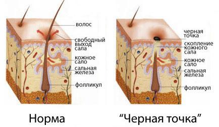 Угри на спине: причины и лечение, польза витаминов и косметических ...