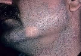 Алопеция бороды у мужчин: причины и лечение
