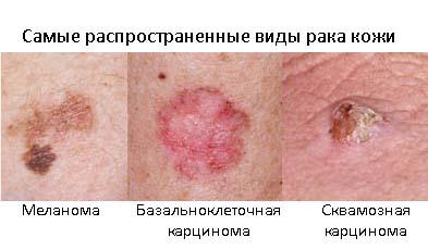 Рак кожи - причины, профилактика и лечение
