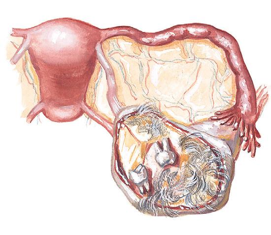 Дермоидная киста яичника. Причины. Лечение. Удаление | Киста яичника