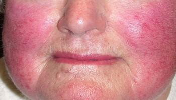 Как лечить розацеа на лице | Уход за проблемной кожей