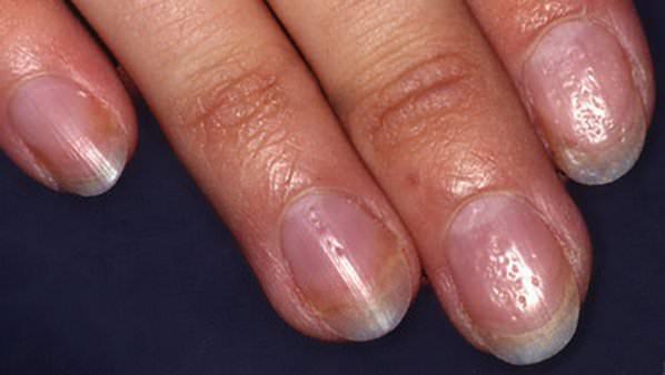 Псориаз ногтей: лечение, фото и симптомы