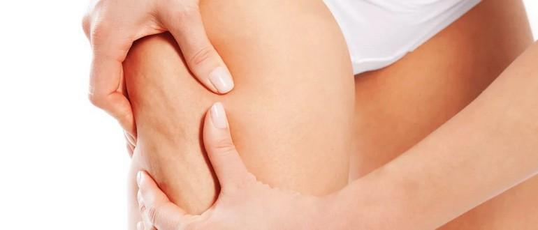 От чего появляется целлюлит на ногах и животе - причины