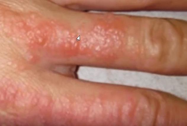 Дисгидротическая экзема на пальцах рук лечение | Уход за ...