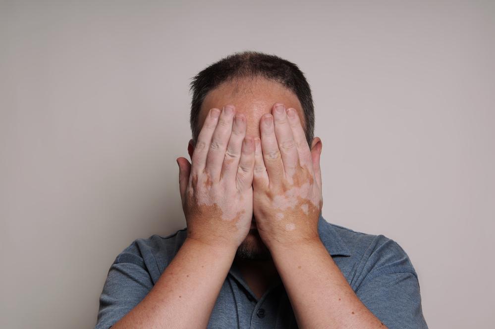 Депигментация кожи - причины появления симптома, способы лечения