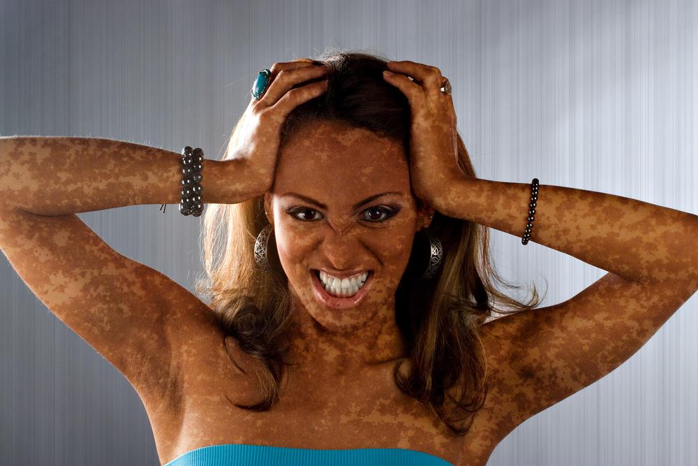 Депигментация кожи причины