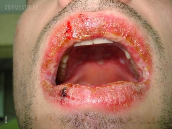 Многоформная экссудативная эритема фото