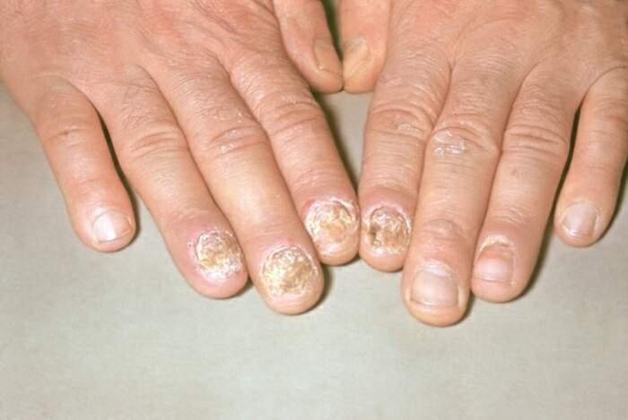 Форма псориаза ногтей