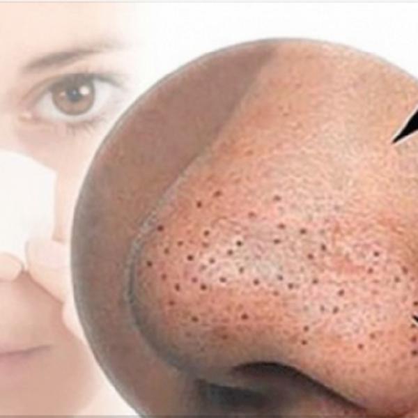 Фото 2 - Черные точки на лице