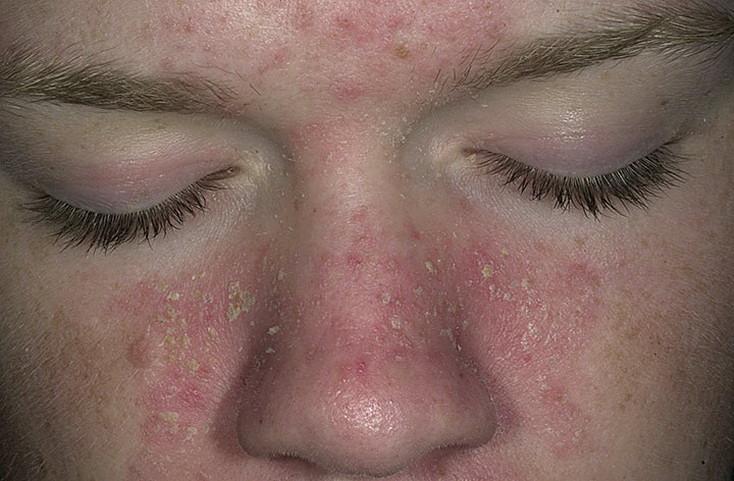 Себорея кожи лица