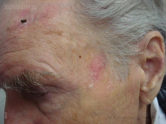 Актинический кератоз и плоскоклеточный рак кожи. Случай №577 ...