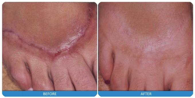 Фото до и после иссечения коллоидного рубца