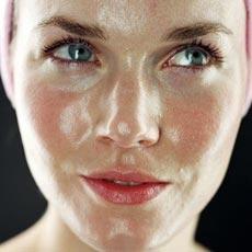 Жирная себорея лица – общая характеристика
