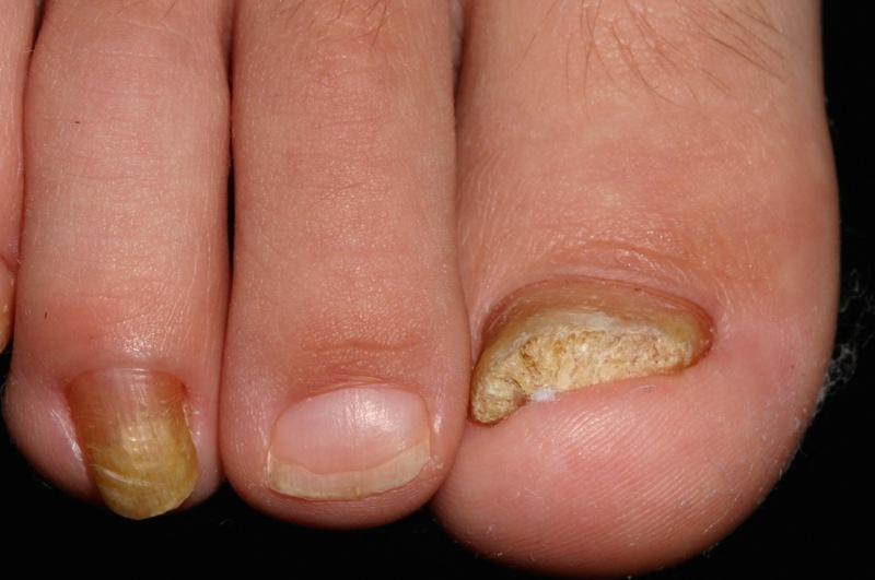Как определить грибок на ногтях ног (отличить от других заболеваний)