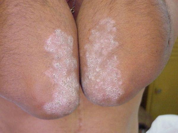 Псориаз на локтях: симптомы, причины и лечение