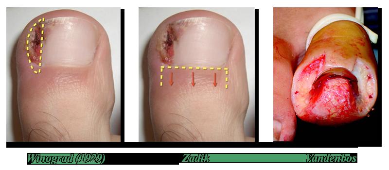 Удаление вросшего ногтя хирургическим путем (операция)