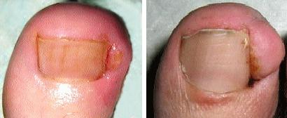 Вросший ноготь. Лечение вросшего ногтя. - Семейный Доктор