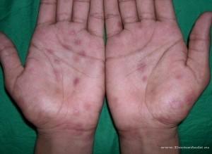 Cифилитическая сыпь ФОТО и картинки сифилитической сыпи
