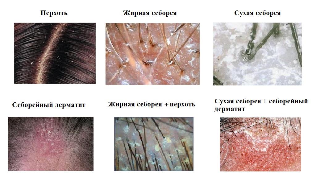 Себорейный дерматит — лечение себорейного дерматита лица ...