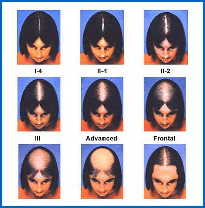 Выпадение волос причины, лечение - Здоровье - Lidernews