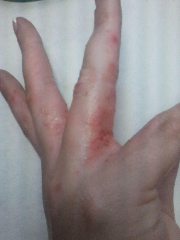 Зуд И Покраснение Между Пальцами Рук Фото