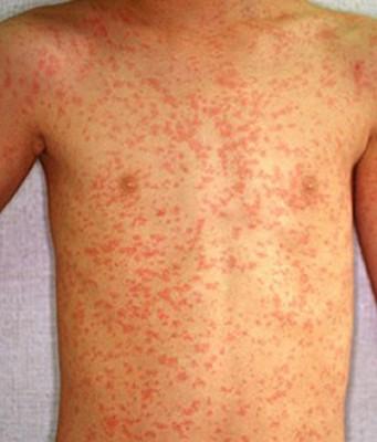 Сыпь после антибиотиков: следует обратиться к врачу, аллергия от ...