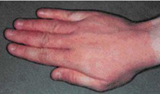 Аллергический контактный дерматит - Причины, симптомы и лечение. МЖ.